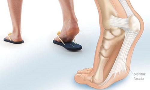 calzature problemi piede