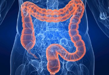 Cancro del colon retto: le regole della prevenzione