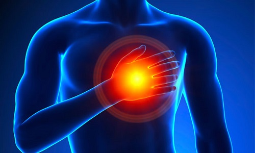 infarto angina ischemia