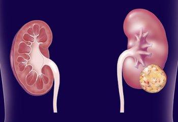 Tumore rene killer silenzioso, colpite 12.600 persone l'anno